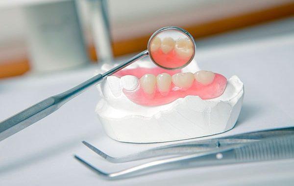 Льготное протезирование зубов в 2020-2021 году: кому положено, как сделать, законы и